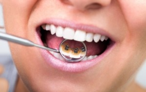 L'ORTHODONTIE LINGUALE